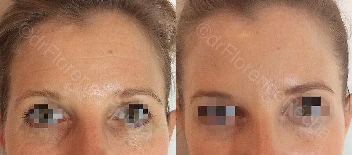 Photo avant/après séance d'injections de Botox à Cannes, Dr Pecha 2