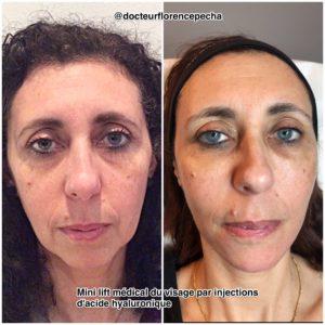 Les injections d'AH pour un mini lift médical à Cannes, Dr Pecha