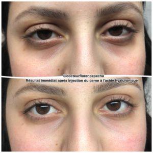 Résultat immédiat après injection d'acide hyaluronique à Cannes, Dr Pecha