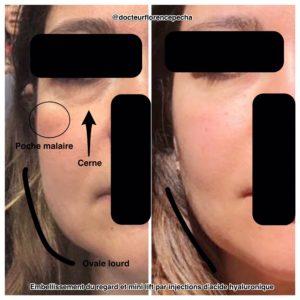 Embellir l'ovale du visage avec les injections à Cannes du Dr Pecha 2