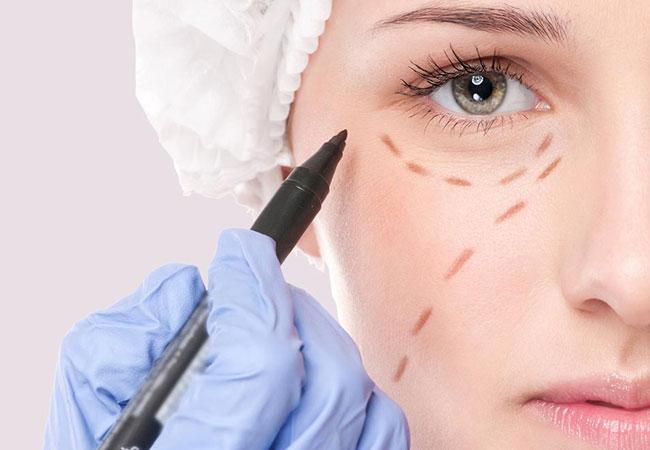 La Blépharoplastie ou chirurgie des paupières à Cannes avec le Dr Pecha