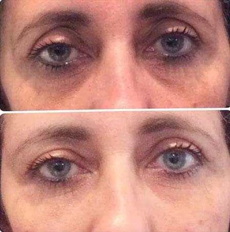 Photo avant / après injections d'AH pour le regard à Cannes, Dr Pecha