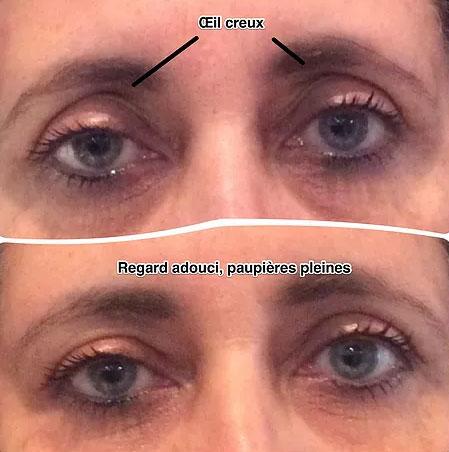 Photo avant/après un traitement de l'oeil creux à Cannes, Dr Pecha